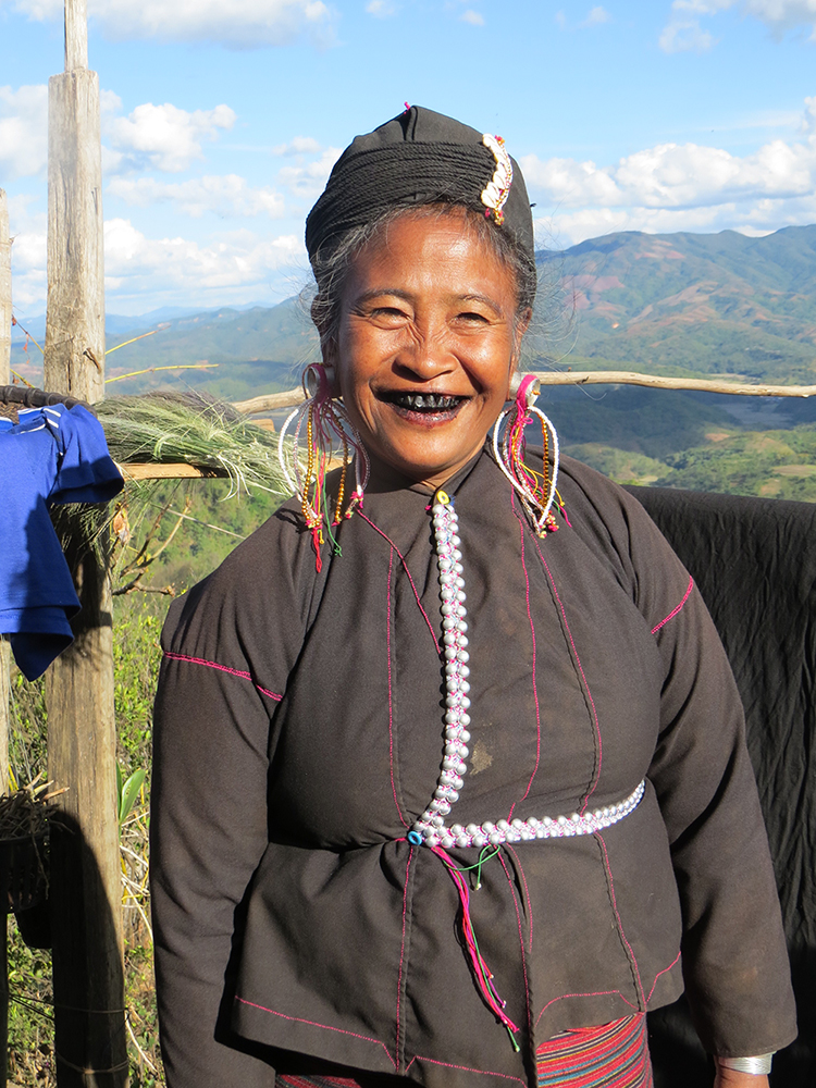 This Eng grandmother sports the traditional blackened teeth of her tribe.