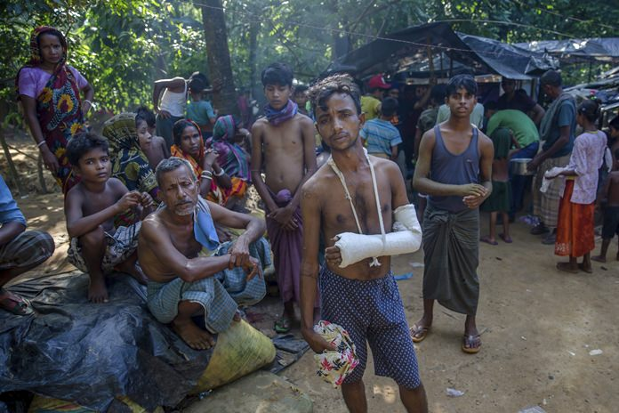A Hindu man, center, who crossed over from Myanmar into Bangladesh, and was allegedly beaten by Muslims in Myanmar, stands outside a refugee camp near Kutupalong, Bangladesh, Monday, Sept. 25. (AP Photo/Dar Yasin)