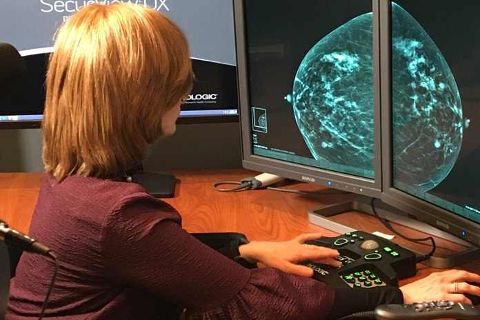 In this Nov. 21, 2017, Dr. Tova Koenigsberg at The Montefiore Einstein Center for Cancer Care in New York shows an example of a traditional mammogram scan. U.S. health officials are beginning a huge study to compare traditional mammograms with 3-D versions, to see if the newer choice might really improve screening for breast cancer. (Montefiore Health System via AP)