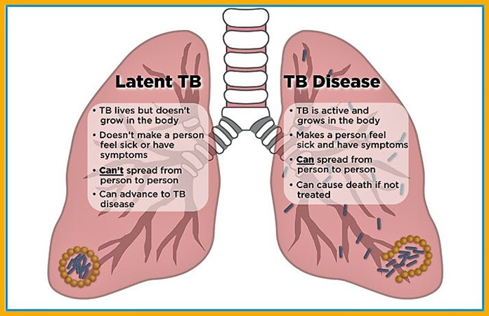 This graphic shows a comparison of Latent TB and Disease TB. Source: https://www.tbfacts.org/