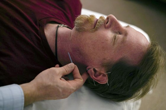 David Ramsey, a Medicaid patient who suffers from chronic pain after falling off a cliff in 2011, receives acupuncture treatment in Warrensville Heights, Ohio. Long derided as pseudoscience, acupuncture is increasingly being used by doctors and officials seeking a new weapon in the nation's struggle with opioids. (AP Photo/Dake Kang)