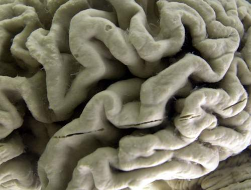 This Oct. 7, 2003 file photo shows a section of a human brain with Alzheimer's disease on display at the Museum of Neuroanatomy at the University at Buffalo, in Buffalo, N.Y. On Wednesday, July 25, 2018, two drug makers said an experimental therapy slowed mental decline by 30 percent in patients who got the highest dose in a mid-stage study, and it removed much of the sticky plaque gumming up their brains. The drug, called BAN2401, is from Eisai and Biogen. (AP Photo/David Duprey)