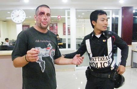 """Philip Champreks complains to police about how he was beaten for """"having fun"""" on a baht bus."""