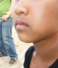 The 14-year-old girl shows rescuers some of the scars from the abuse her stepfather inflicted upon her.