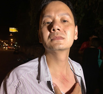 Zhu Tianming shows the scratches he received when a young thief snatched his gold necklace.