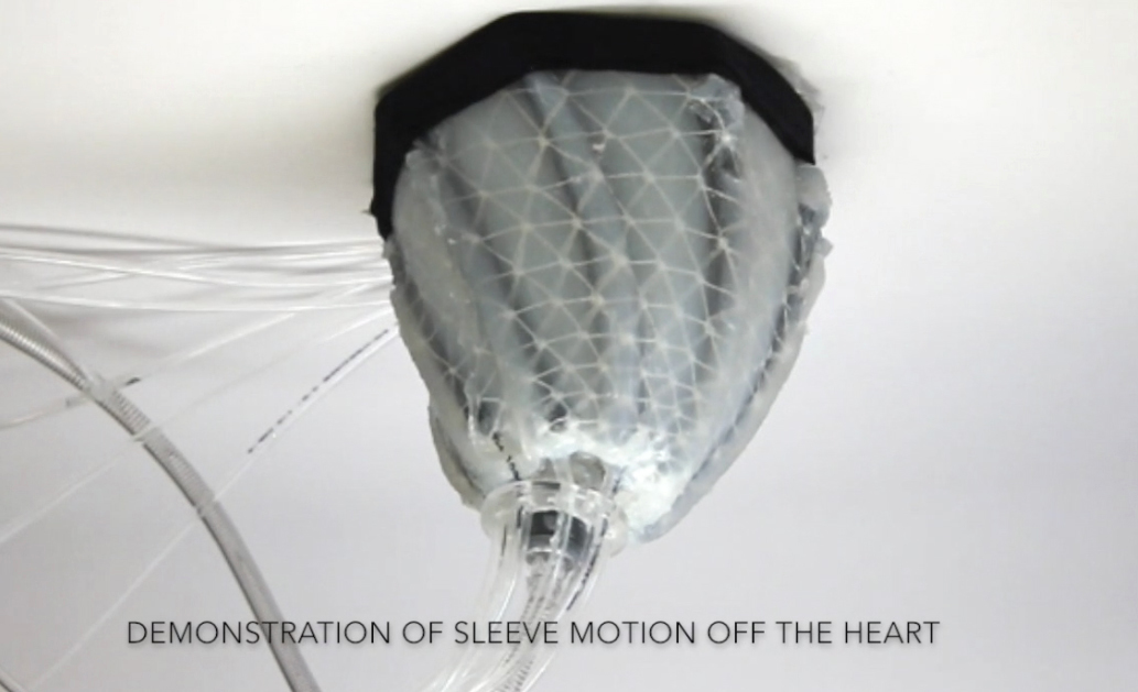 In this image from video, provided by Harvard University, a robotic sleeve designed to encase a diseased heart and gently squeeze it to help it better pump blood. Researchers at Harvard and Boston Children's Hospital developed the experimental device in hopes of improving treatment of heart failure, when the heart becomes too weak to pump. (Ellen Roche/Science Translational Medicine via AP)