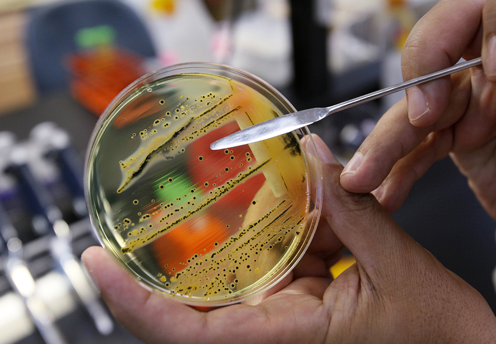 Dr. Mansour Samadpour points out a growth of salmonella in a petri dish at IEH Laboratories in Lake Forest Park, Wash. The World Health Organization has issued a list of the top dozen bacteria most dangerous to humans, warning that doctors are fast running out of treatment options. (AP Photo/Elaine Thompson, file)