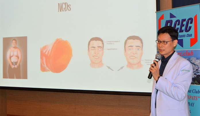 """Dr. Suthep explains Non-Communicable Diseases (NCDs), their causes, and risk factors. The bottom-line advice from Dr. Suthep is to """"Correct the risk factors!"""" Thus avoiding or reducing your chances of developing NCDs."""