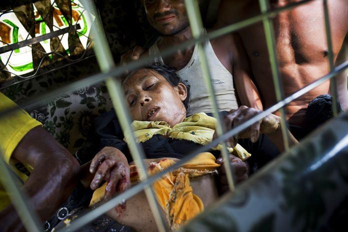 An injured elderly woman and her relatives rush to a hospital on an autorickshaw, near the border town of Kutupalong, Bangladesh.(AP Photo/Bernat Armangue)