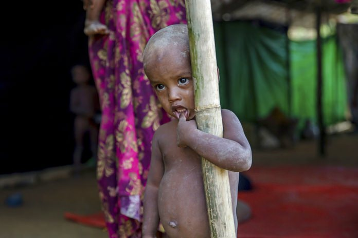 A Rohingya Muslim boy, who crossed over from Myanmar into Bangladesh, stands near a newly built shelter at Balukhali refugee camp, Bangladesh, Wednesday, Sept. 13, 2017. (AP Photo/Dar Yasin)