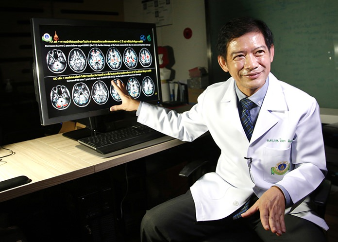 Dr. Witaya Sungkarat, Ramathibodi Hospital, explains brain scans from young boxers. Witaya said studies show that the sport caused damage, and in many cases, irreparable, in the young children's brain development. (AP Photo/Sakchai Lalit)