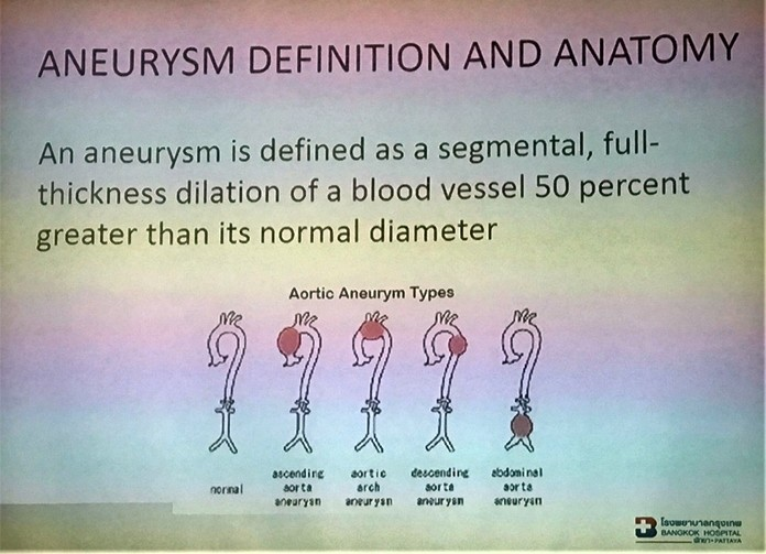 Dr. Sujit Banyatpiyaphod displayed this slide as he described what an Abdominal Aortic Aneurysm is and the types that can occur.