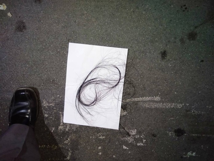 A tuft of black hair was found next to the crumpled body, which led to speculation it might somehow indicate the fall might not have been voluntary.